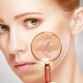 Huidop1 - behandeling